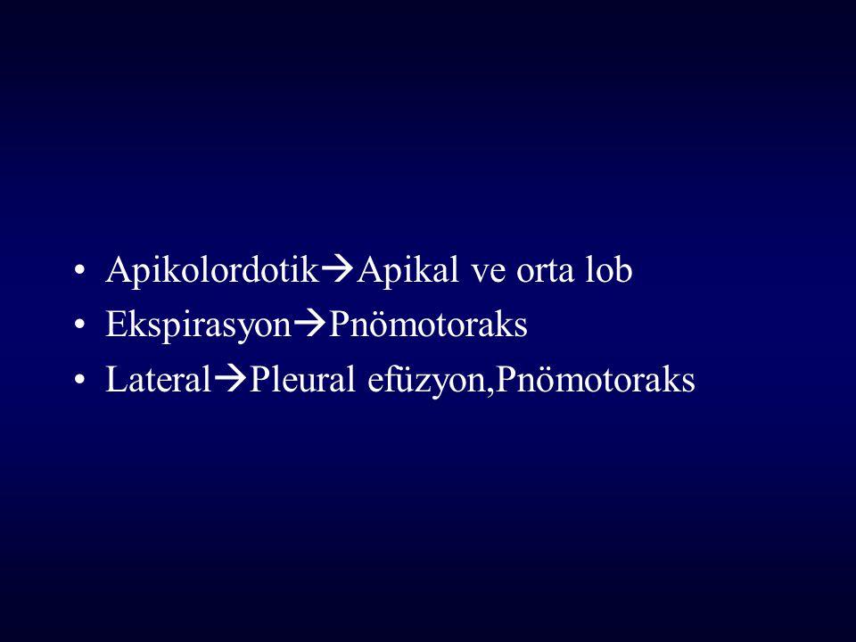 Apikolordotik  Apikal ve orta lob Ekspirasyon  Pnömotoraks Lateral  Pleural efüzyon,Pnömotoraks