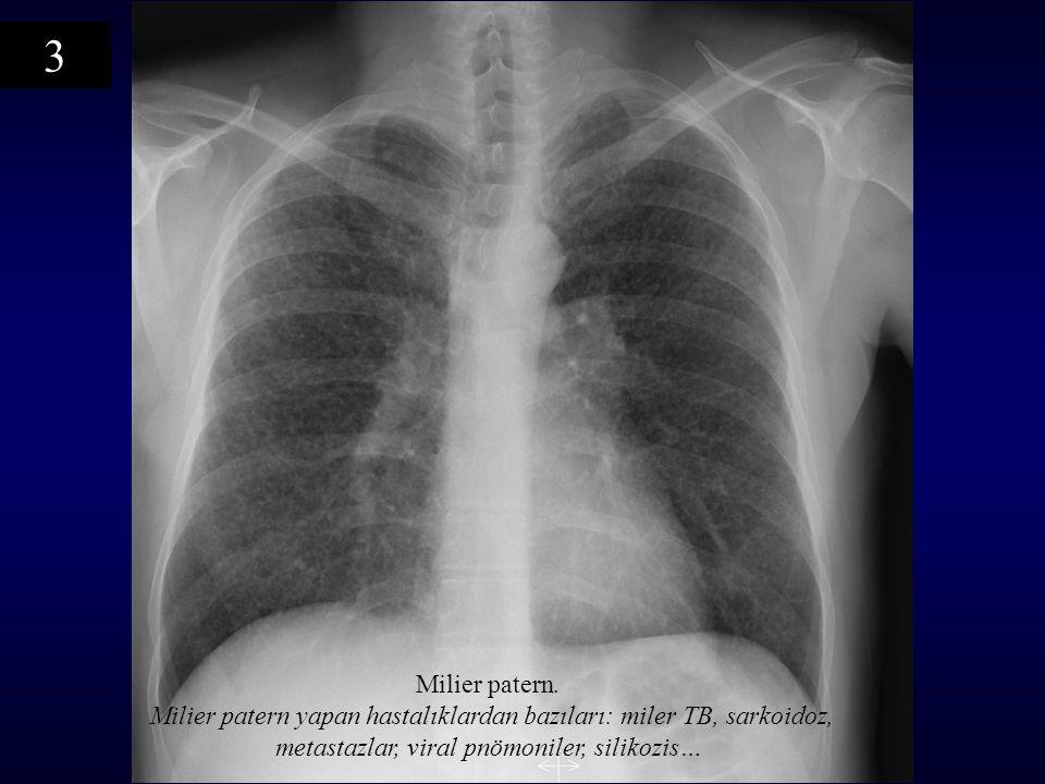 Milier patern. Milier patern yapan hastalıklardan bazıları: miler TB, sarkoidoz, metastazlar, viral pnömoniler, silikozis… 3
