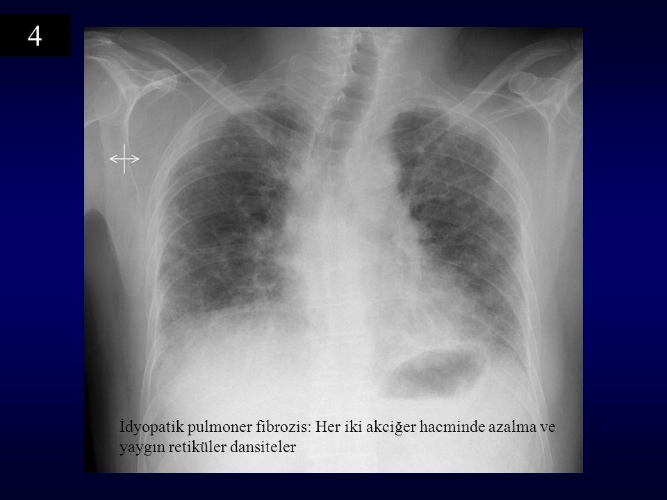 İdyopatik pulmoner fibrozis: Her iki akciğer hacminde azalma ve yaygın retiküler dansiteler 4