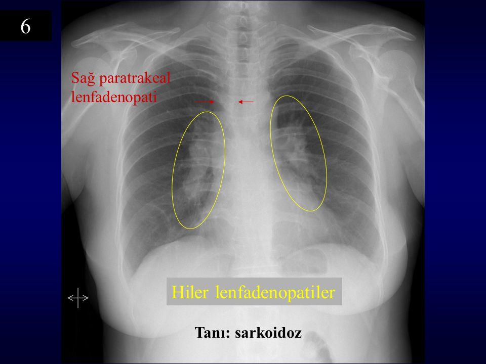 Sağ paratrakeal lenfadenopati Hiler lenfadenopatiler Tanı: sarkoidoz 6
