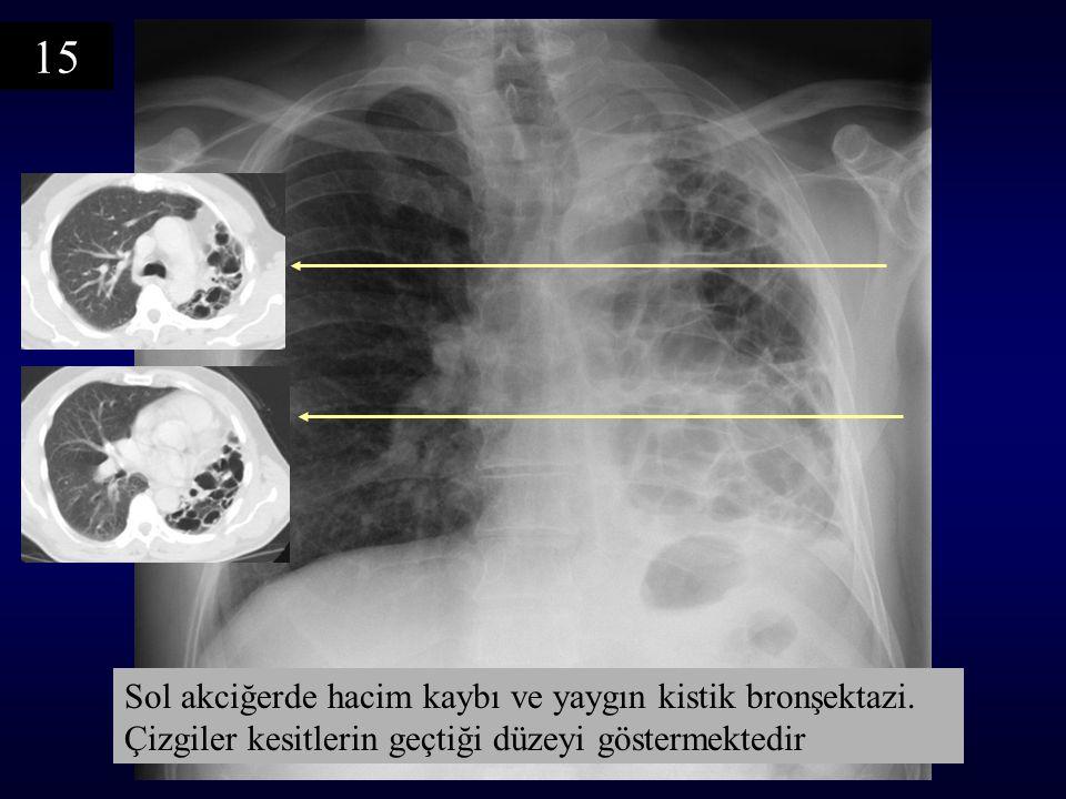 Sol akciğerde hacim kaybı ve yaygın kistik bronşektazi. Çizgiler kesitlerin geçtiği düzeyi göstermektedir 15