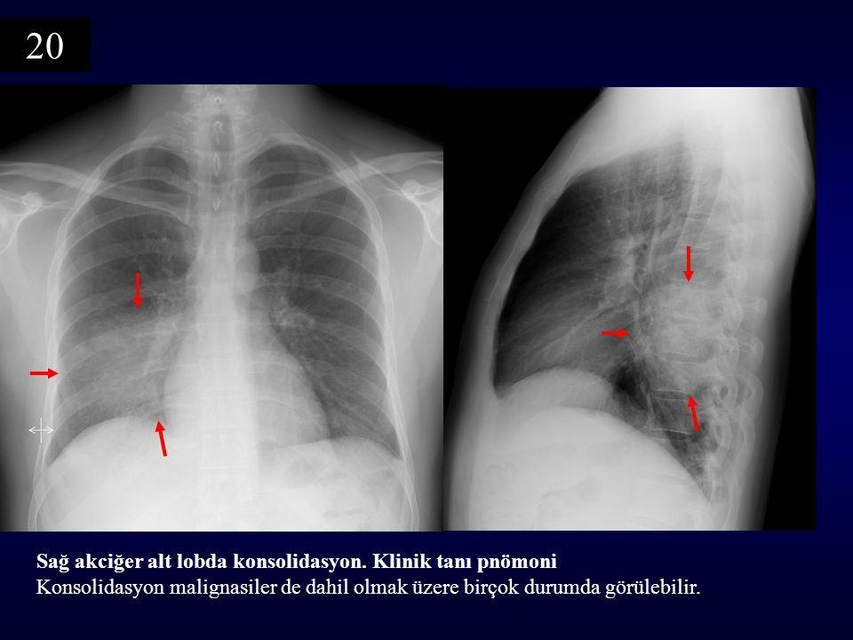 20 Sağ akciğer alt lobda konsolidasyon. Klinik tanı pnömoni Konsolidasyon malignasiler de dahil olmak üzere birçok durumda görülebilir.