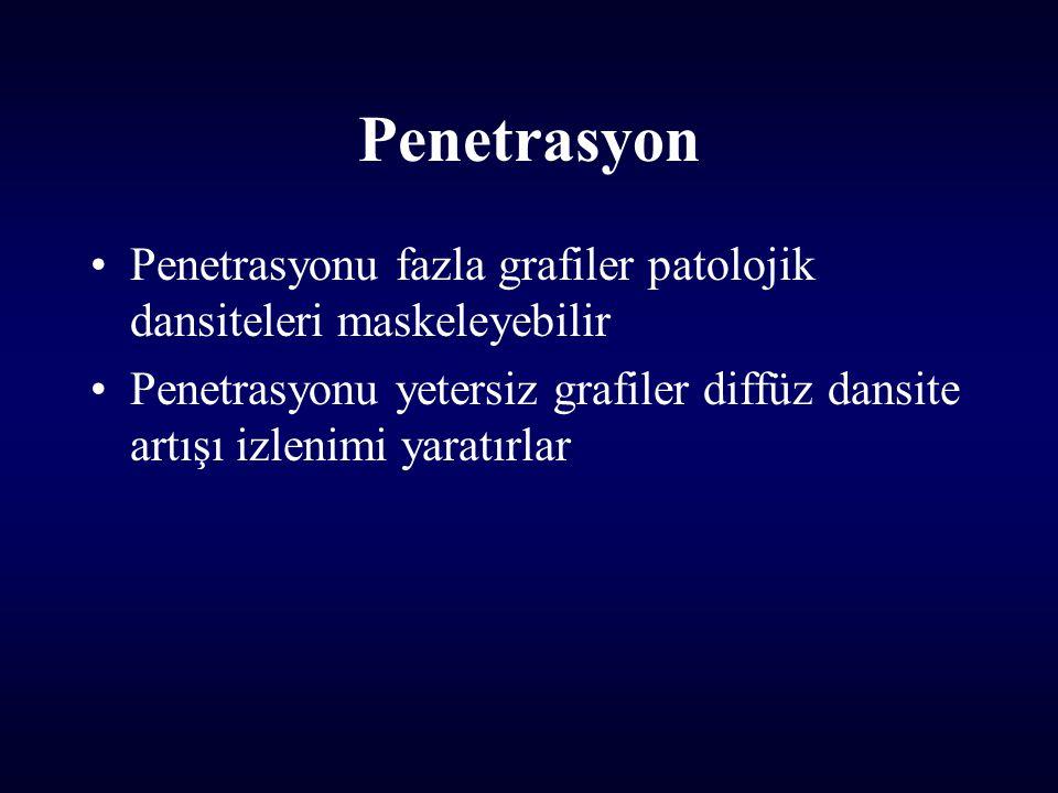 Penetrasyon Penetrasyonu fazla grafiler patolojik dansiteleri maskeleyebilir Penetrasyonu yetersiz grafiler diffüz dansite artışı izlenimi yaratırlar