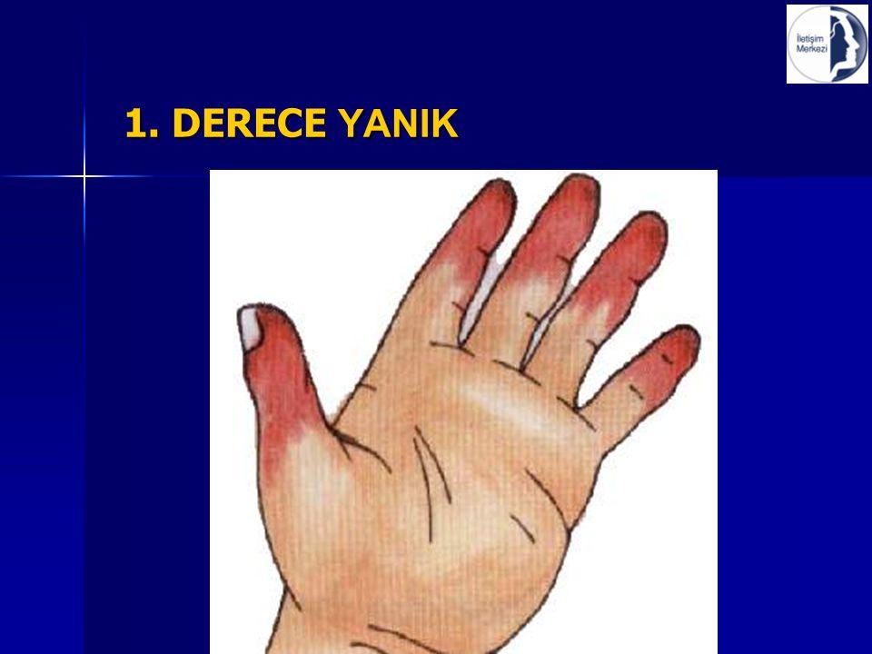 1. DERECE YANIK 1. DERECE YANIK