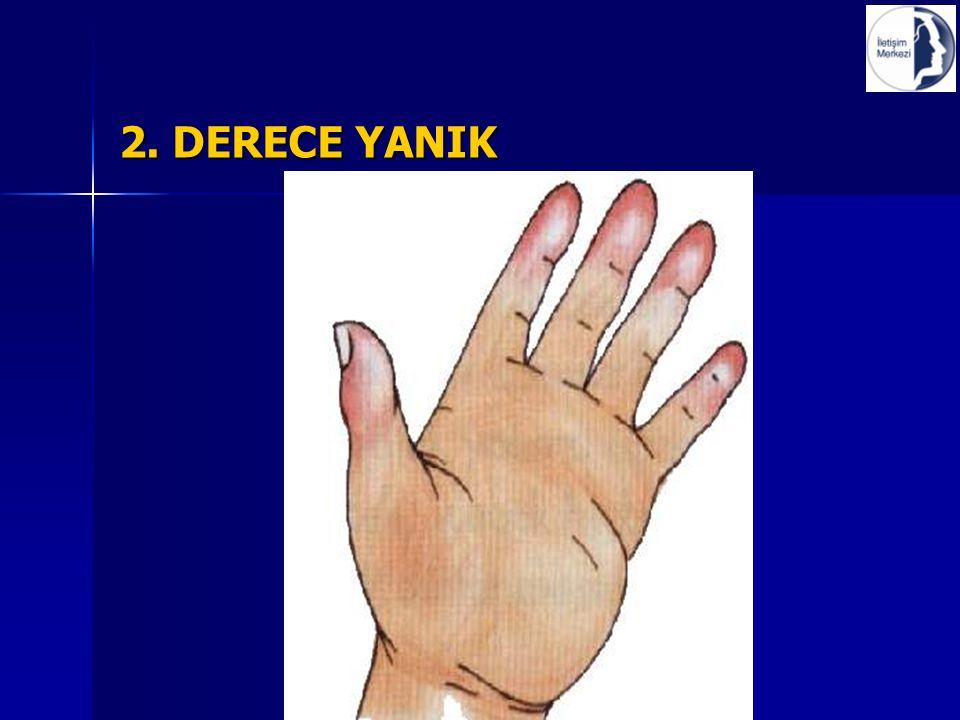 2. DERECE YANIK