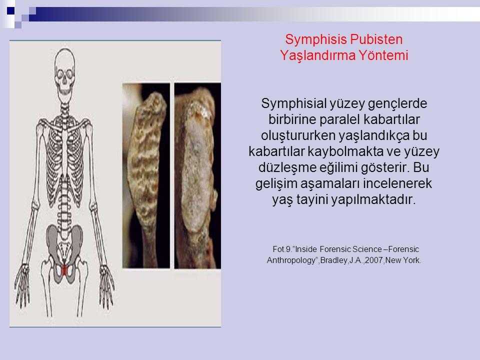 Symphisis Pubisten Yaşlandırma Yöntemi Symphisial yüzey gençlerde birbirine paralel kabartılar oluştururken yaşlandıkça bu kabartılar kaybolmakta ve yüzey düzleşme eğilimi gösterir.