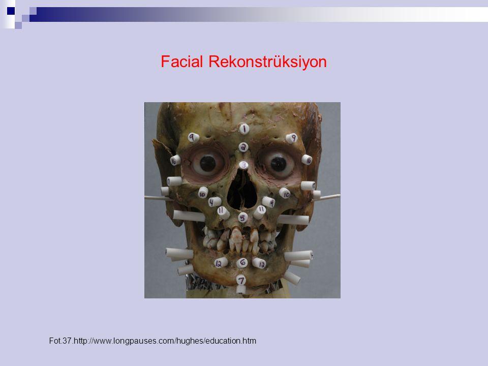 Facial Rekonstrüksiyon Fot.37.http://www.longpauses.com/hughes/education.htm