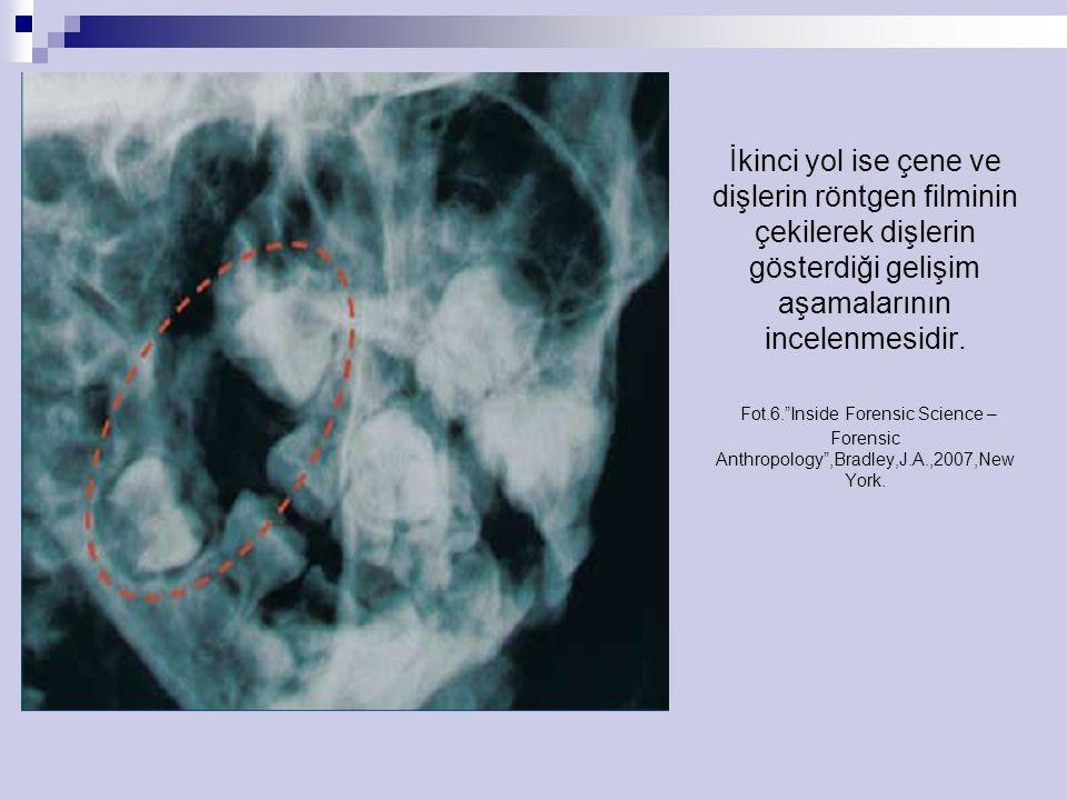 """İkinci yol ise çene ve dişlerin röntgen filminin çekilerek dişlerin gösterdiği gelişim aşamalarının incelenmesidir. Fot.6.""""Inside Forensic Science – F"""