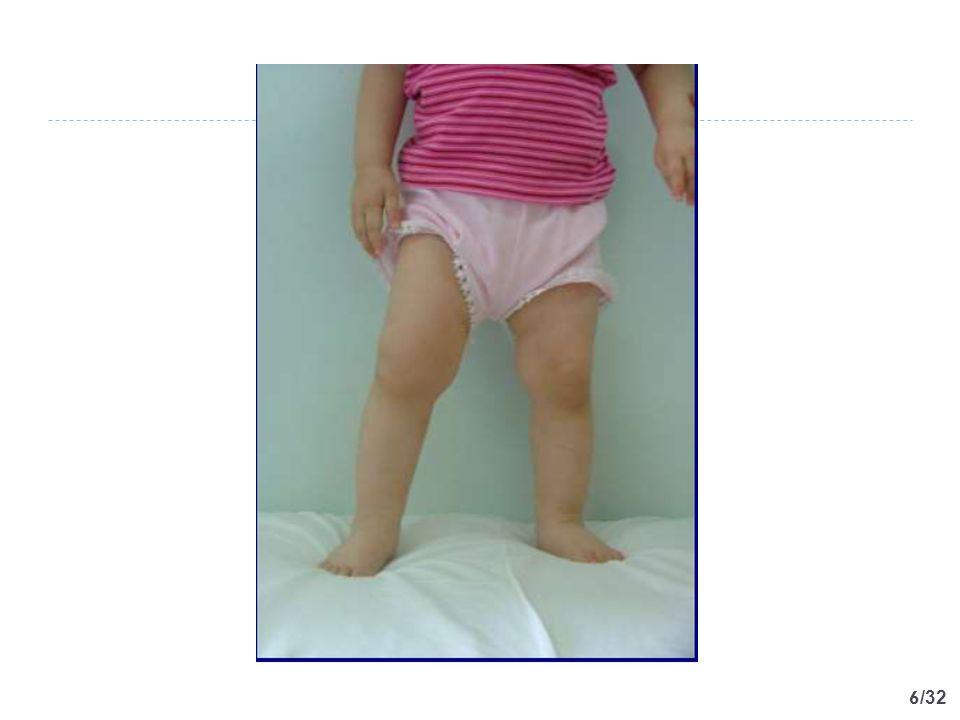 17 /32 Tanımlar  Artrit; herhangi bir eklemde şişlik veya hareket kısıtlılığı, hareketle ağrı ve ısı artışından herhangi ikisinin görüldüğü enflamatuar durum  Artralji ise sadece ağrının bulunduğu diğer enflamatuar belirtilerin saptanmadığı durum