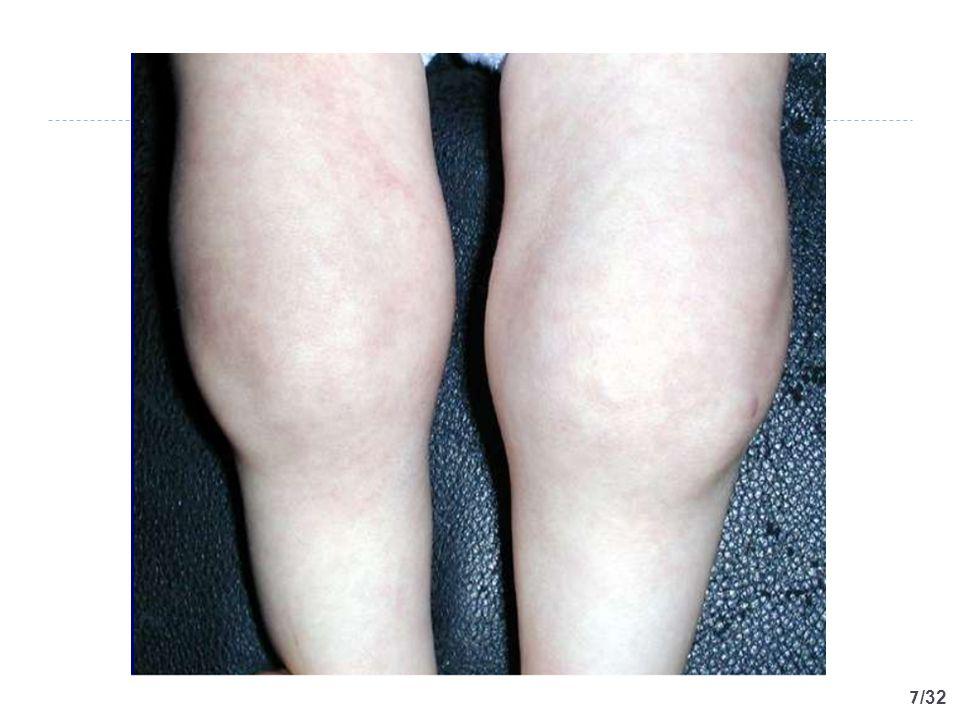 18 /32 Tanımlar  Akut artrit: Var olan artritin bir eklemde 6 haftadan daha kısa sürdüğü durumdur.