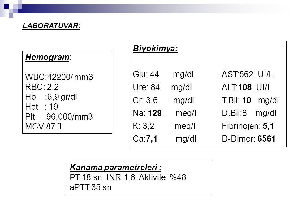 Hemogram: WBC:42200/ mm3 RBC: 2,2 Hb :6,9 gr/dl Hct : 19 Plt :96,000/mm3 MCV:87 fL Biyokimya: Glu: 44 mg/dl AST:562 UI/L Üre: 84 mg/dl ALT:108 UI/L Cr