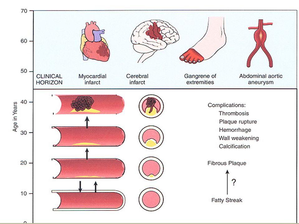 Ateroskleroz Kanda fazla miktarda bulunan kolesterol ve trigliseridler, kan damarlarında birikir ve bunların sertleşmesine ve daralmasına () yol açar.