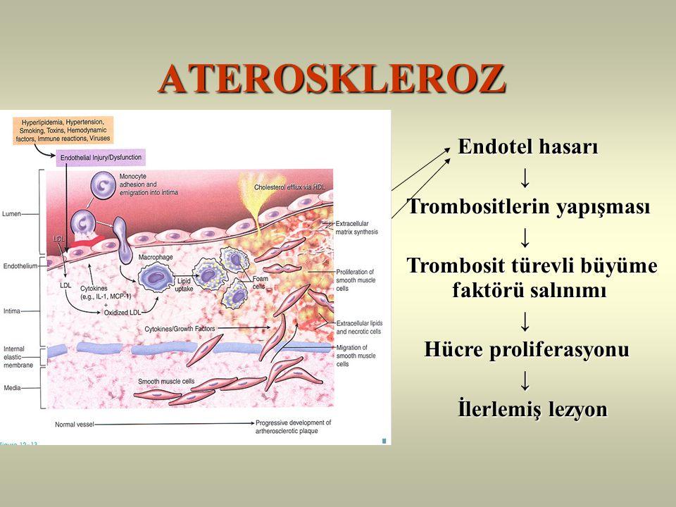 ATEROSKLEROZ ATEROSKLEROZ Yüksek plazma LDL düzeyi Yüksek plazma LDL düzeyi ↓ ↓ İntimaya LDL infiltrasyonu İntimaya LDL infiltrasyonu ↓ ↓ Okside LDL ve makrofajlar Okside LDL ve makrofajlar ↓ ↓ Köpük Hücreler Köpük Hücreler ↓ ↓ Yag Çizgileri Yag Çizgileri Endotel hasarı Endotel hasarı ↓ ↓ Trombositlerin yapışması Trombositlerin yapışması ↓ ↓ Trombosit türevli büyüme faktörü salınımı Trombosit türevli büyüme faktörü salınımı ↓ ↓ Hücre proliferasyonu Hücre proliferasyonu ↓ ↓ İlerlemiş lezyon İlerlemiş lezyon