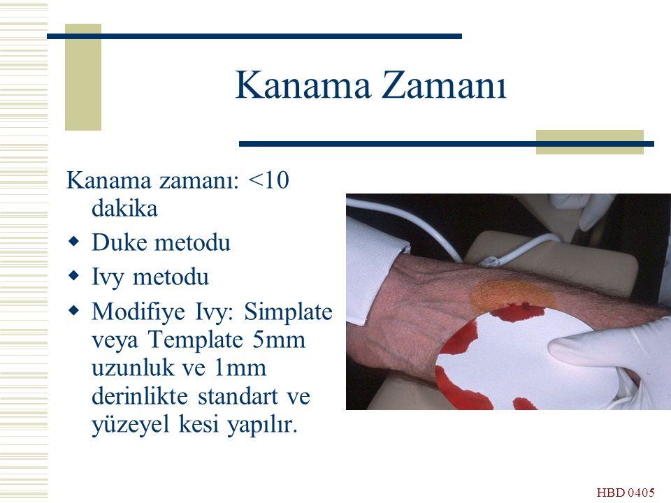 HBD 0405 Kanama Zamanı Kanama zamanı: <10 dakika  Duke metodu  Ivy metodu  Modifiye Ivy: Simplate veya Template 5mm uzunluk ve 1mm derinlikte stand