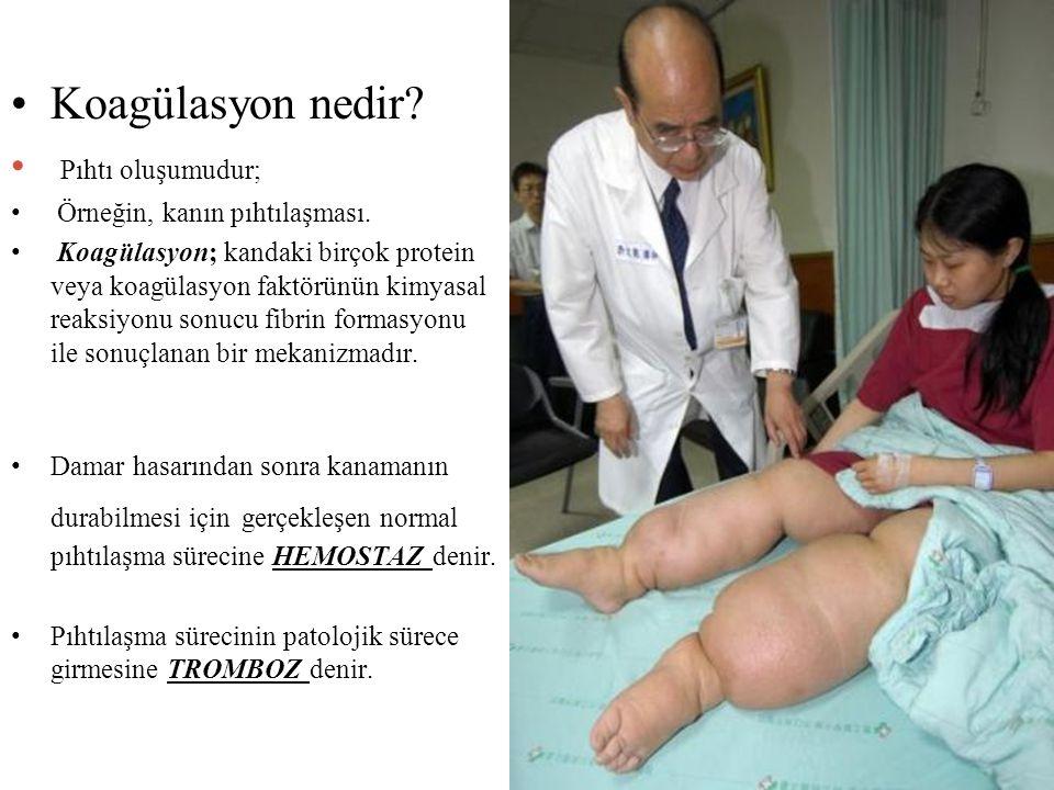 Koagülasyon nedir? Pıhtı oluşumudur; Örneğin, kanın pıhtılaşması. Koagülasyon; kandaki birçok protein veya koagülasyon faktörünün kimyasal reaksiyonu