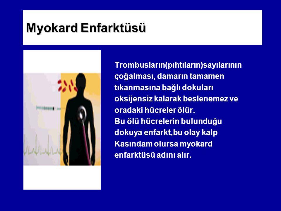 Myokard Enfarktüsü Trombusların(pıhtıların)sayılarının çoğalması, damarın tamamen tıkanmasına bağlı dokuları oksijensiz kalarak beslenemez ve oradaki hücreler ölür.
