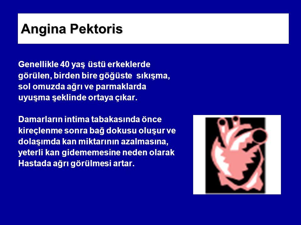 Angina Pektoris Genellikle 40 yaş üstü erkeklerde görülen, birden bire göğüste sıkışma, sol omuzda ağrı ve parmaklarda uyuşma şeklinde ortaya çıkar.
