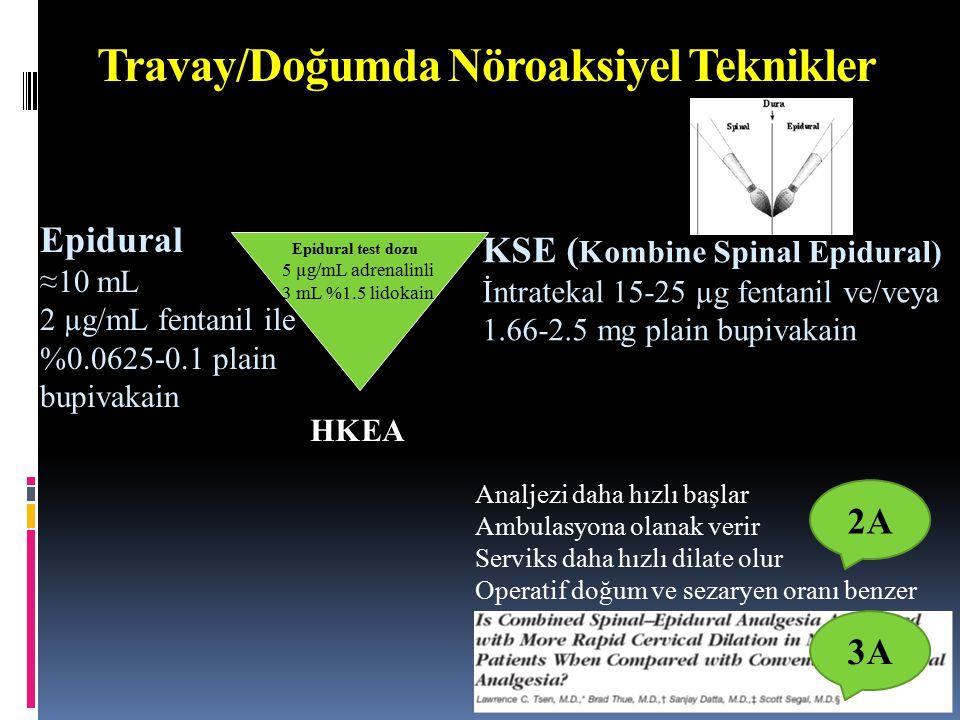 Travay/Doğumda Nöroaksiyel Teknikler Epidural ≈10 mL 2 µg/mL fentanil ile %0.0625-0.1 plain bupivakain KSE ( Kombine Spinal Epidural) İntratekal 15-25