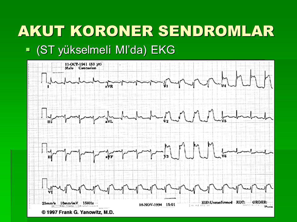 AKUT KORONER SENDROMLAR  (ST yükselmeli MI'da) EKG