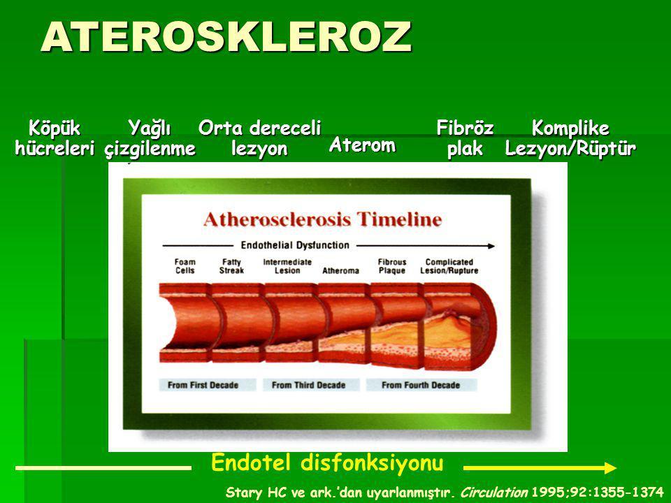 ATEROSKLEROZ & KORONER ATEROSKLEROZ  ATEROMUN SEYRİ -Arter lümeninde daralma; İSKEMİ -Ruptür, tromboz gelişimi; ENFARKT -Anevrizma oluşumu KORONER ATEROMUN SEYRİ VE KLİNİK -Arter lümeninde daralma ; Stabil Angina P.