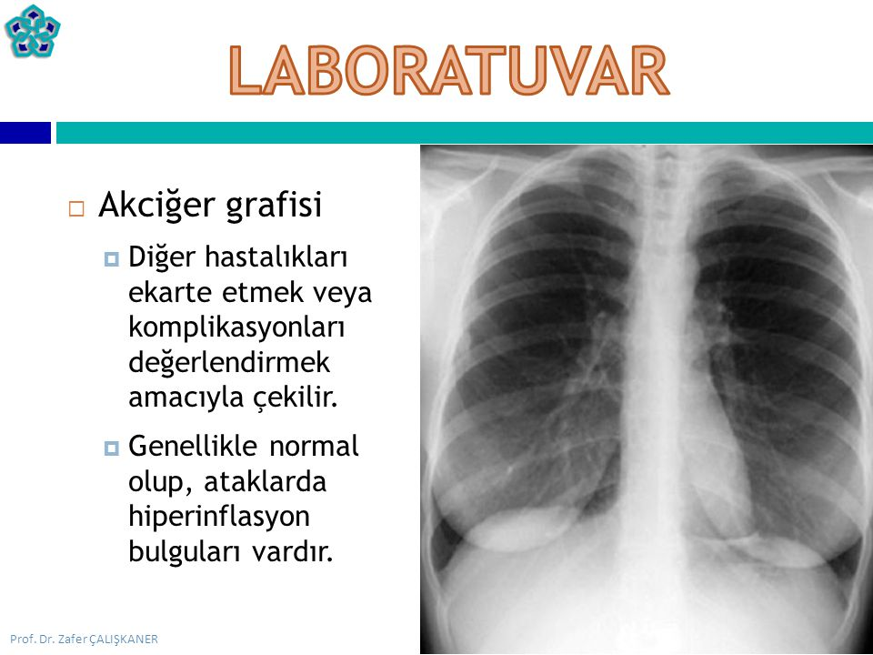 Prof. Dr. Zafer ÇALIŞKANER  Akciğer grafisi  Diğer hastalıkları ekarte etmek veya komplikasyonları değerlendirmek amacıyla çekilir.  Genellikle nor