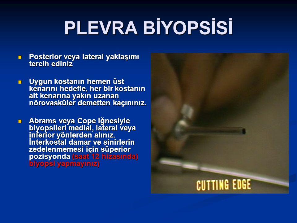 Rijid bronkoskopi endikasyonları Daha büyük biyopsi gerektiğinde Masif kanama Yabancı cisim çıkarılması Strüktür/stenoz dilatasyonu Stent yerleştirilmesi Tümör rezeksiyonu( mekanik, elektrokoter, lazer, kriyoterapi, argon plazma)