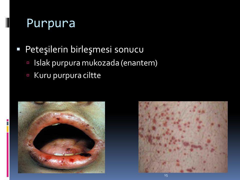15 Purpura  Peteşilerin birleşmesi sonucu  Islak purpura mukozada (enantem)  Kuru purpura ciltte