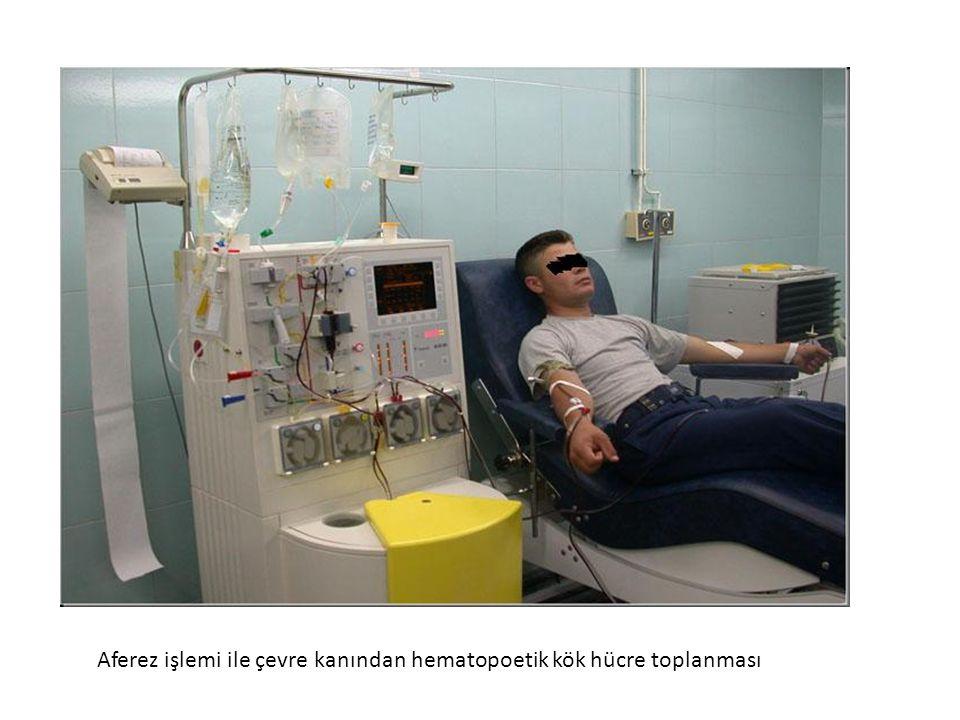 Aferez işlemi ile çevre kanından hematopoetik kök hücre toplanması