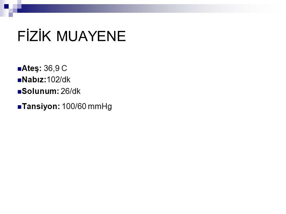 FİZİK MUAYENE Ateş: 36,9 C Nabız:102/dk Solunum: 26/dk Tansiyon: 100/60 mmHg
