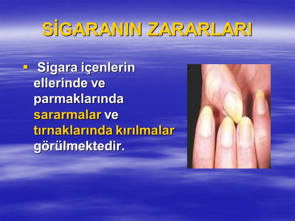 SİGARANIN ZARARLARI  Sigara içenlerin ellerinde ve parmaklarında sararmalar ve tırnaklarında kırılmalar görülmektedir.