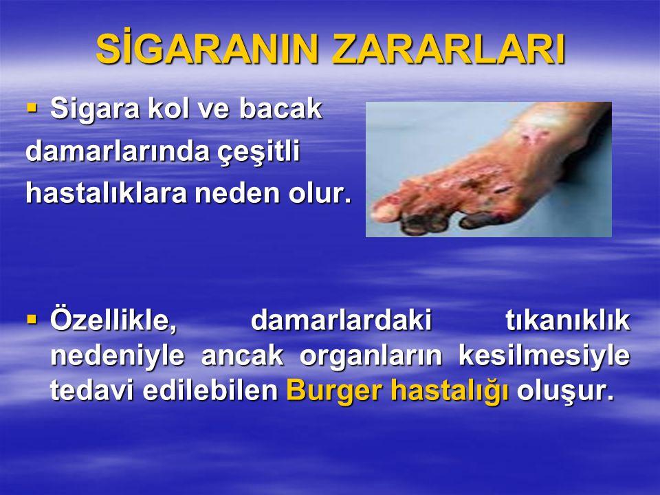 SİGARANIN ZARARLARI  Sigara kol ve bacak damarlarında çeşitli hastalıklara neden olur.  Özellikle, damarlardaki tıkanıklık nedeniyle ancak organları