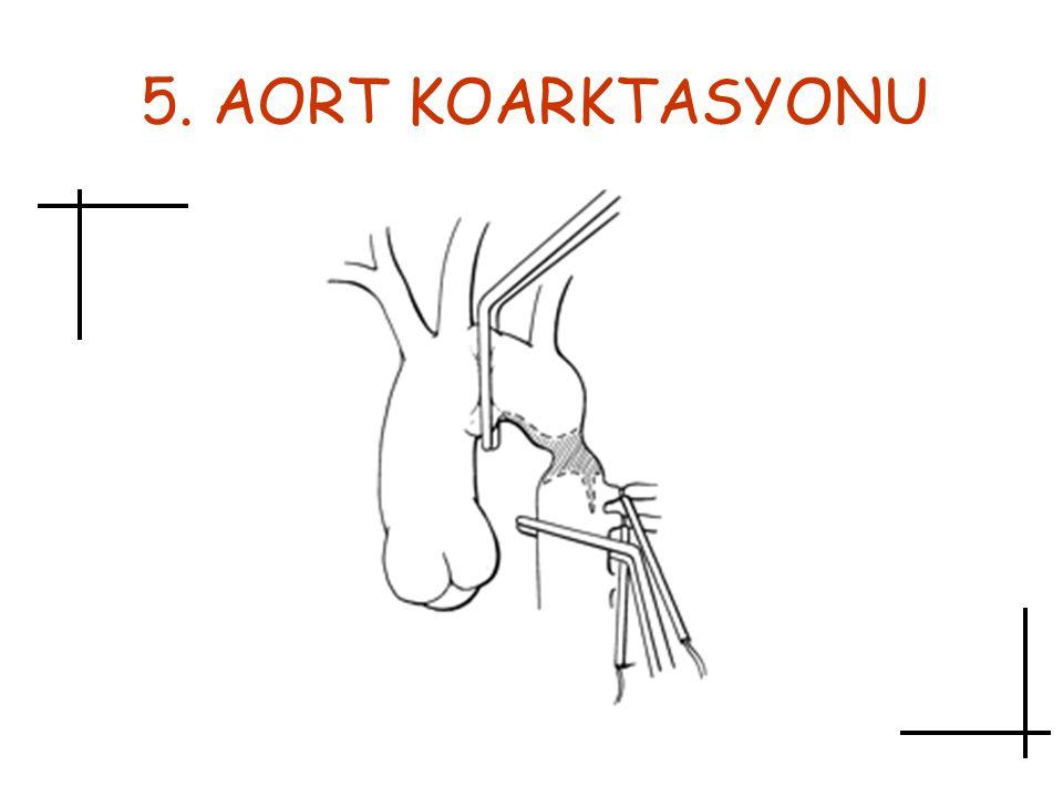 5. AORT KOARKTASYONU