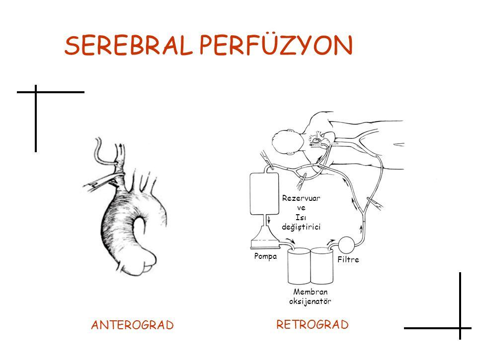 SEREBRAL PERFÜZYON Rezervuar ve Isı değiştirici Pompa Filtre Membran oksijenatör RETROGRAD ANTEROGRAD
