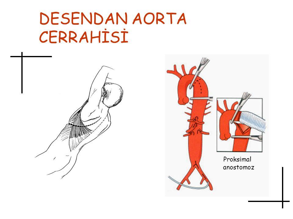 DESENDAN AORTA CERRAHİSİ Proksimal anostomoz
