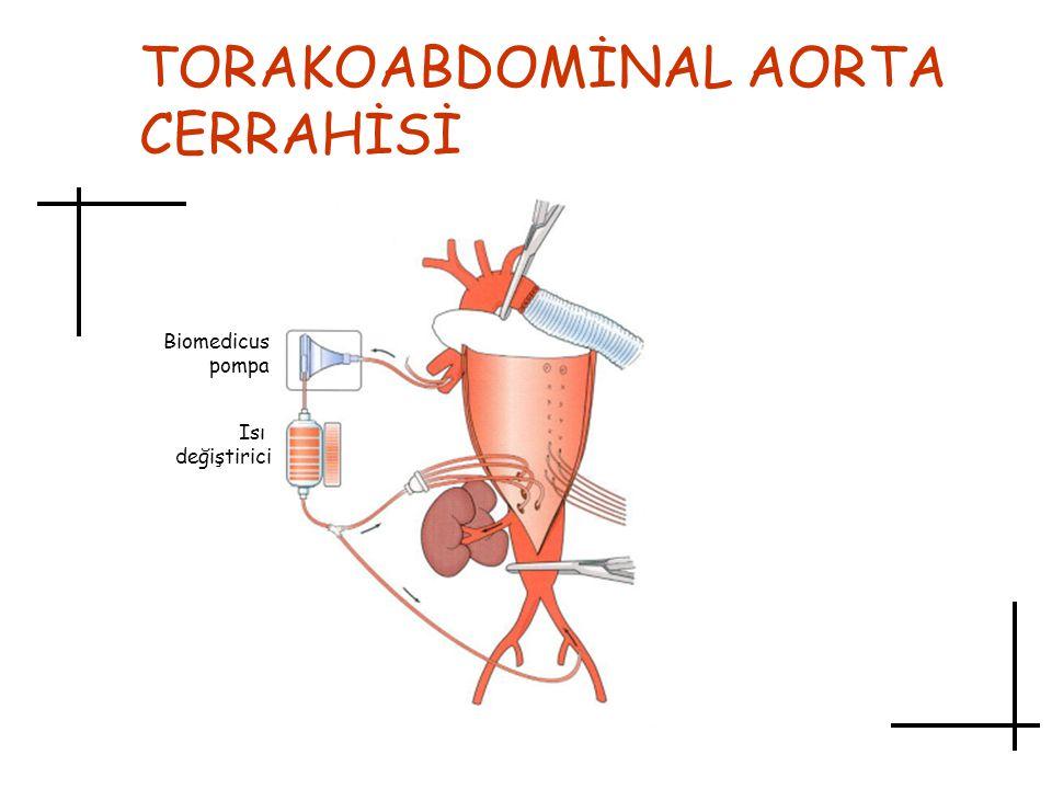 TORAKOABDOMİNAL AORTA CERRAHİSİ Biomedicus pompa Isı değiştirici
