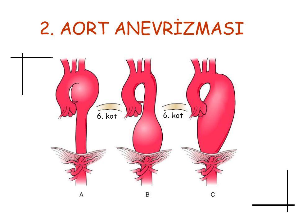 2. AORT ANEVRİZMASI 6. kot
