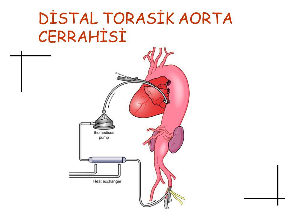 DİSTAL TORASİK AORTA CERRAHİSİ