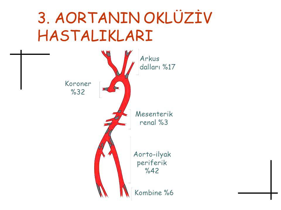3. AORTANIN OKLÜZİV HASTALIKLARI Arkus dalları %17 Mesenterik renal %3 Aorto-ilyak periferik %42 Kombine %6 Koroner %32