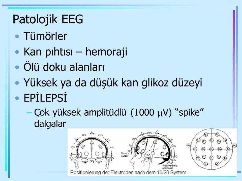 """Patolojik EEG Tümörler Kan pıhtısı – hemoraji Ölü doku alanları Yüksek ya da düşük kan glikoz düzeyi EPİLEPSİ –Çok yüksek amplitüdlü (1000  V) """"spike"""