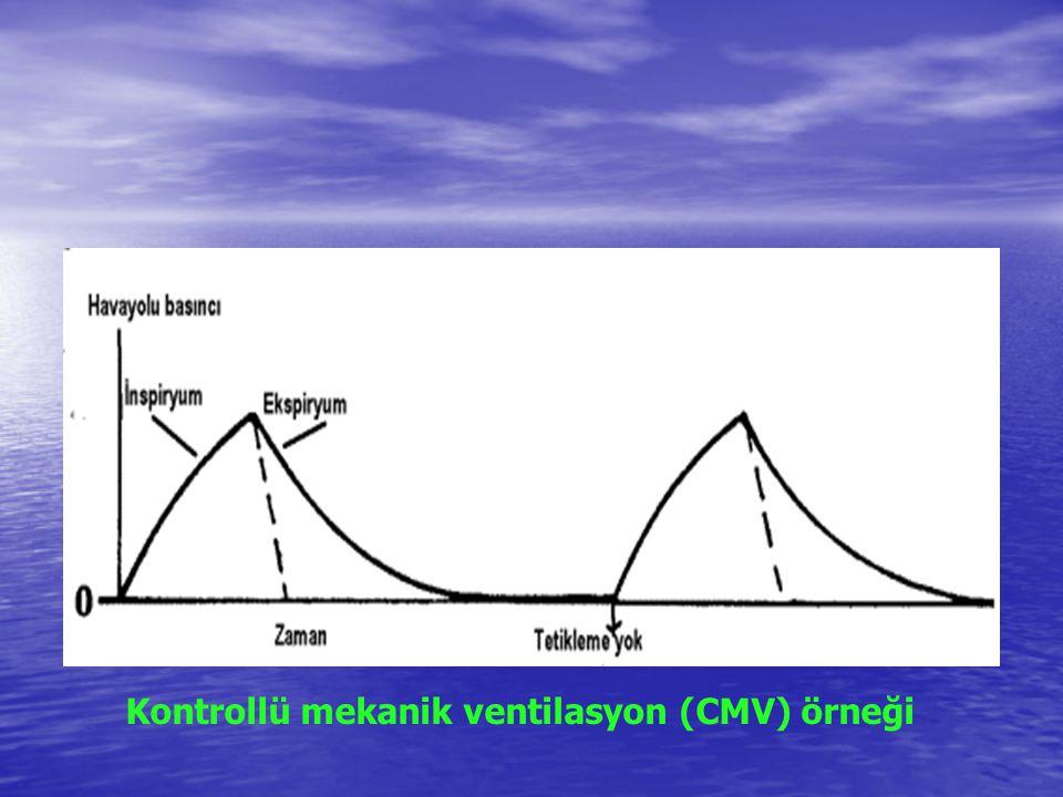 Kontrollü mekanik ventilasyon (CMV) örneği