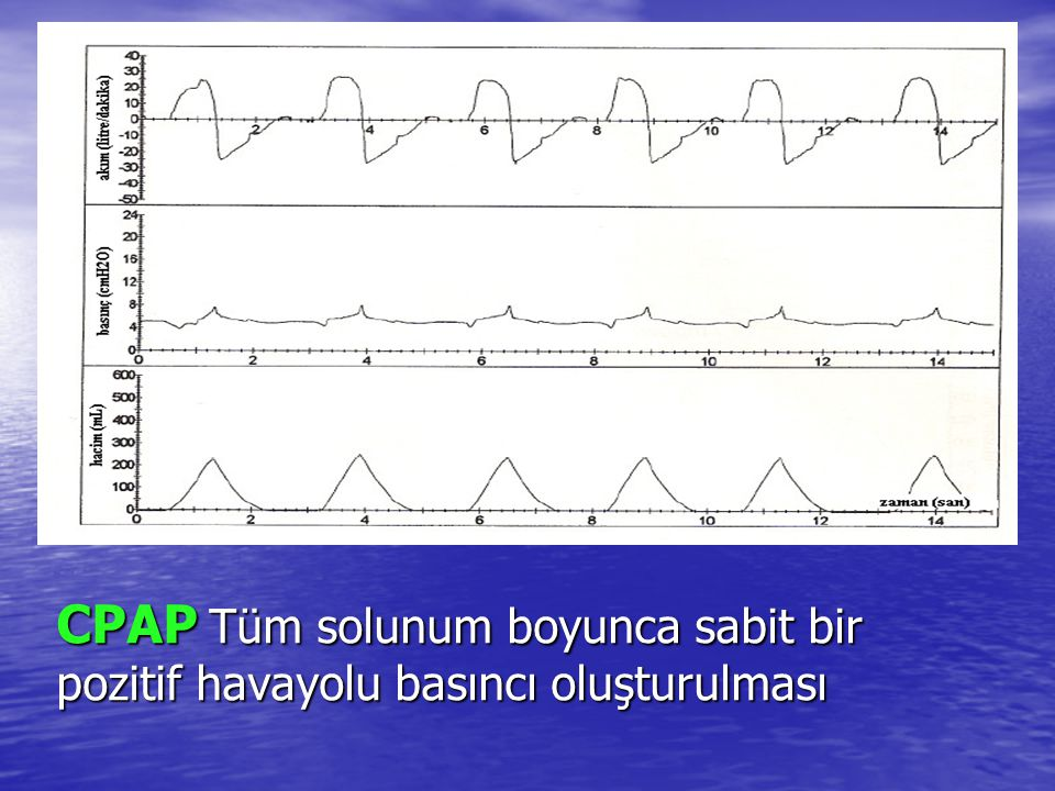 CPAP Tüm solunum boyunca sabit bir pozitif havayolu basıncı oluşturulması