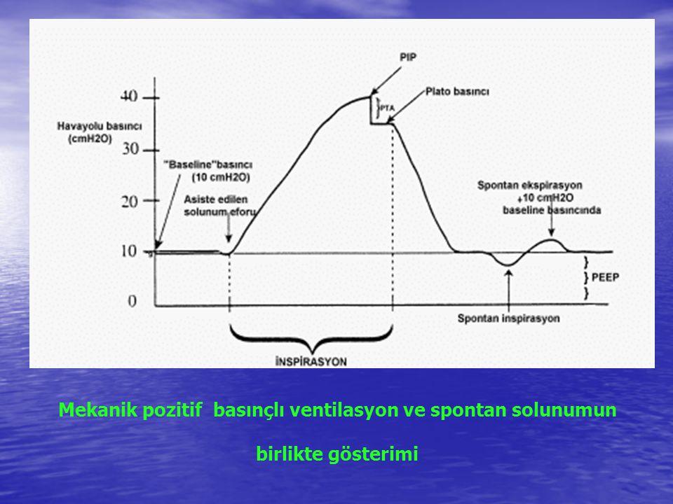 Mekanik pozitif basınçlı ventilasyon ve spontan solunumun birlikte gösterimi