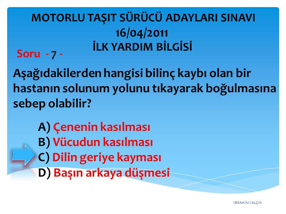 İBRAHİM YALÇIN A) Çenenin kasılması B) Vücudun kasılması C) Dilin geriye kayması D) Başın arkaya düşmesi Aşağıdakilerden hangisi bilinç kaybı olan bir