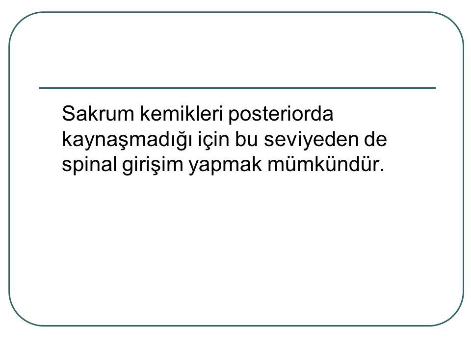Sakrum kemikleri posteriorda kaynaşmadığı için bu seviyeden de spinal girişim yapmak mümkündür.