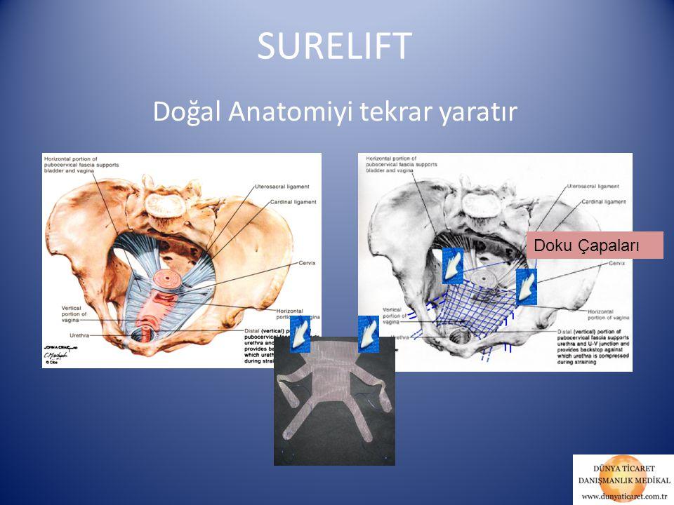 Doğal Anatomiyi tekrar yaratır Doku Çapaları SURELIFT