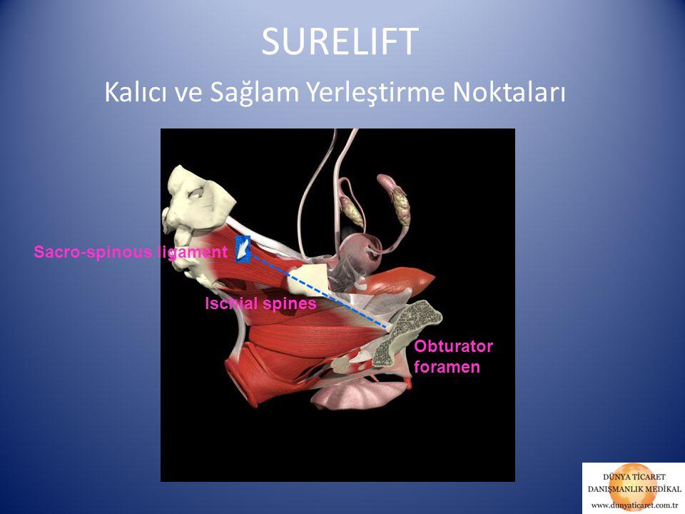 Sacro-spinous ligament Ischial spines Obturator foramen SURELIFT Kalıcı ve Sağlam Yerleştirme Noktaları