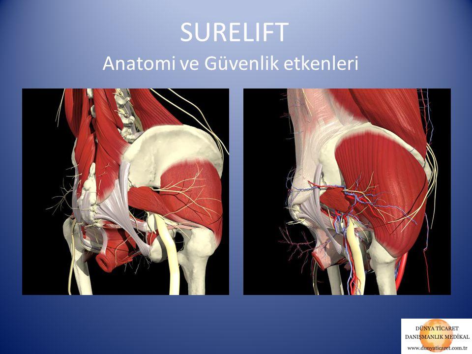 SURELIFT Anatomi ve Güvenlik etkenleri