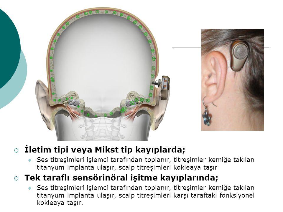  İletim tipi veya Mikst tip kayıplarda; Ses titreşimleri işlemci tarafından toplanır, titreşimler kemiğe takılan titanyum implanta ulaşır, scalp titr