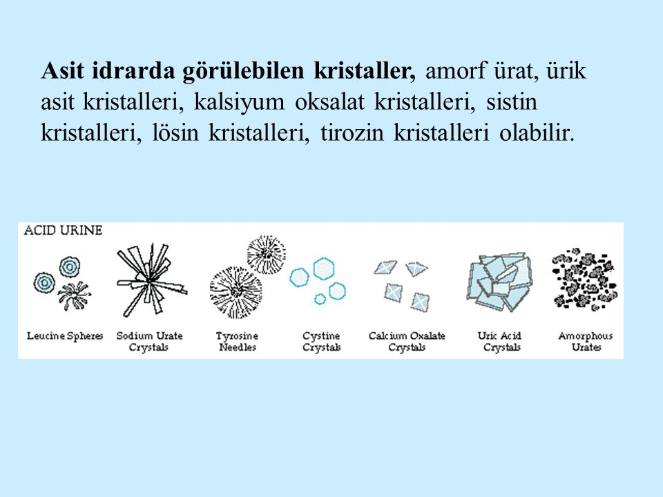 Asit idrarda görülebilen kristaller, amorf ürat, ürik asit kristalleri, kalsiyum oksalat kristalleri, sistin kristalleri, lösin kristalleri, tirozin k