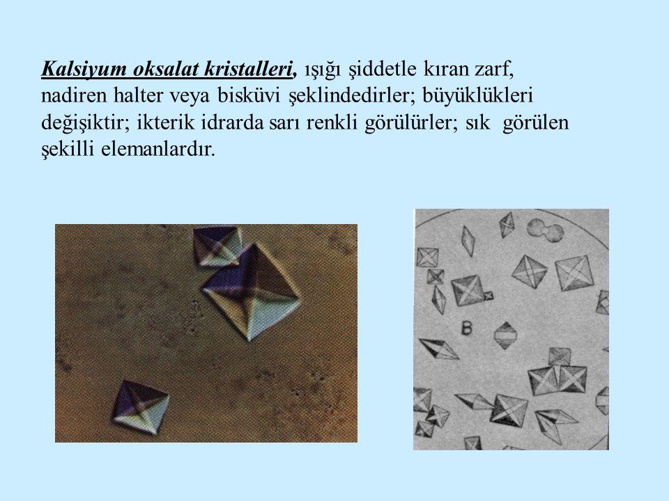 Kalsiyum oksalat kristalleri, ışığı şiddetle kıran zarf, nadiren halter veya bisküvi şeklindedirler; büyüklükleri değişiktir; ikterik idrarda sarı ren